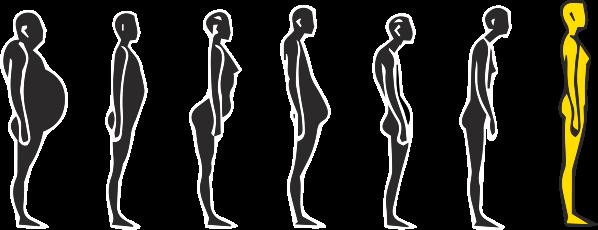 Mauvaises postures et douleurs chroniques